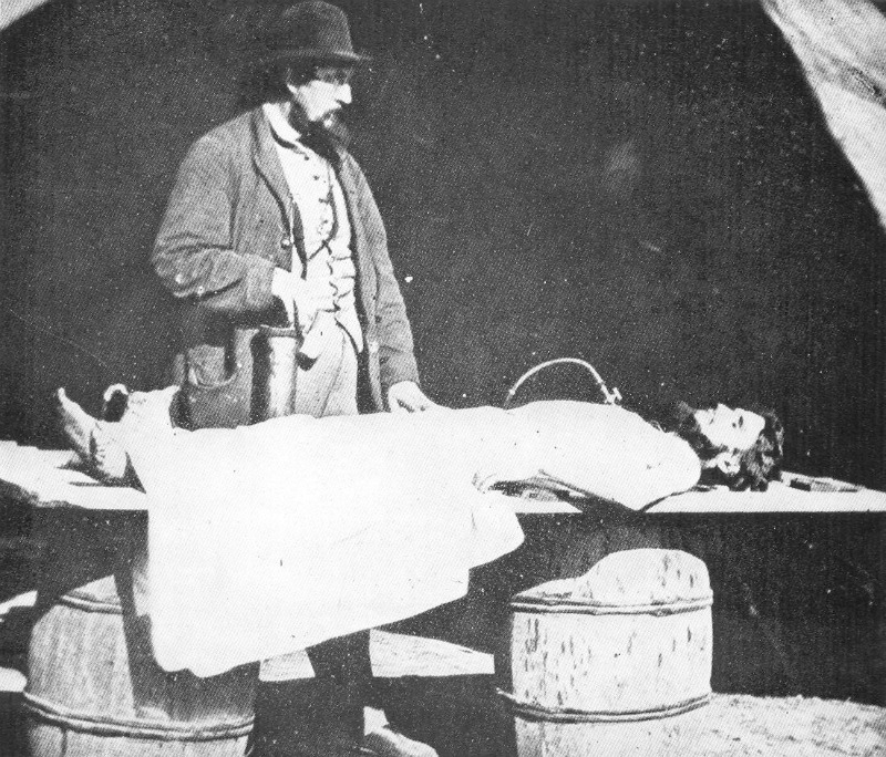 A Photograph Of Richard Burr Embalming Dead Solider Operated Out The Building That Is Not National Museum Civil War Medicine In Frederick